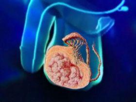 Фото как выглядит рак яичка