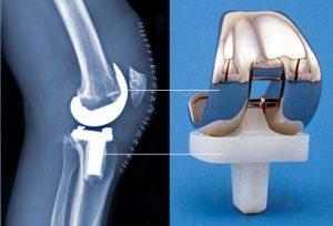 Замена коленного сустава цены в германии почему хрустят шейные суставы