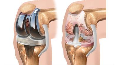 Сколько стоит замена коленного сустава в москве зуд и отек суставов