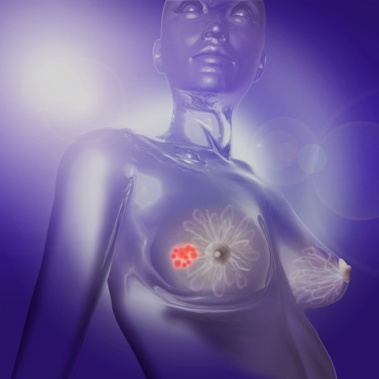 Рак груди, опухоль молочной железы